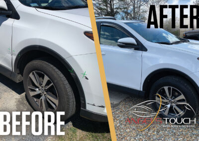 Before After (Group 4 Rav4) Version 1 Angels Touch