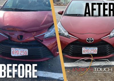 Before After (Group 4 Yaris) Version 1 Angels Touch